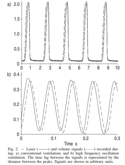 Free Doppler Radar Physiological Sensing PDF Download